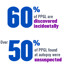 25% of PHEO/PGL are discovered incidentally. Over 50% of PHEO/PGL found at autopsy were unsuspected.